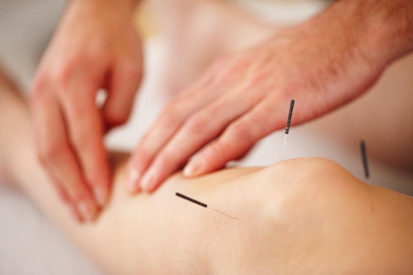 does acupuncture relieve chronic pain? essay Does acupuncture relieve pain [editorial] the bmj  please use one of the following formats to cite this article in your essay, paper or report: mla  does cbd oil work for chronic pain .