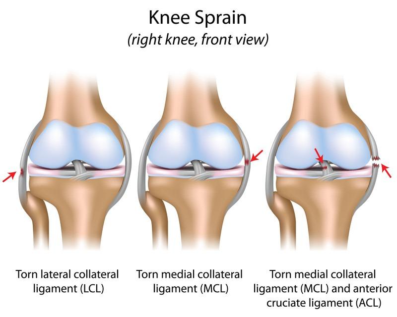 knee-sprain-anatomy