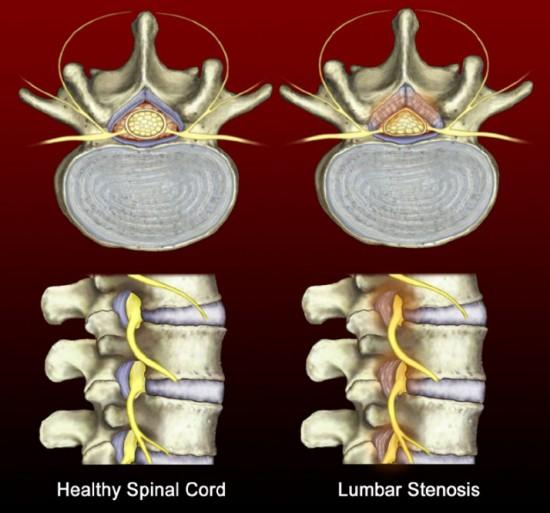 lumbar-spinal-stenosis-5451a4fc488ab