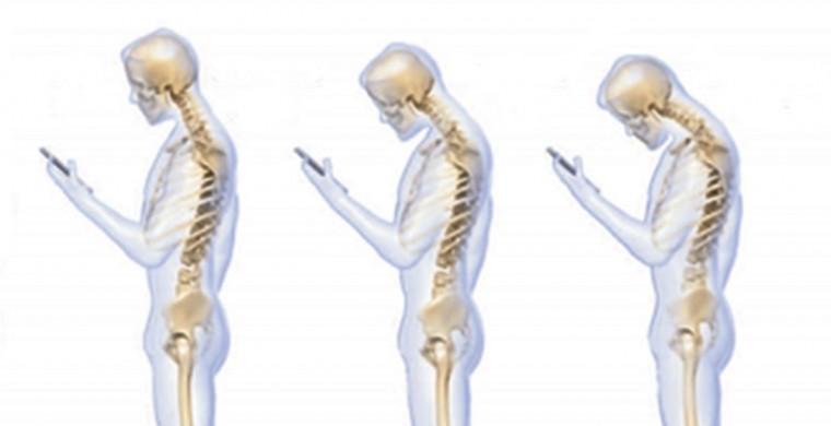 text neck, cellphone elbow - The Washington Post
